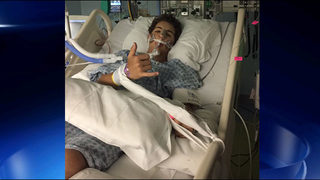 Teenage son of former Braves player on life support after baseball injury