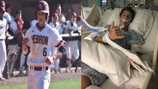 Mother of teen struck by baseball: