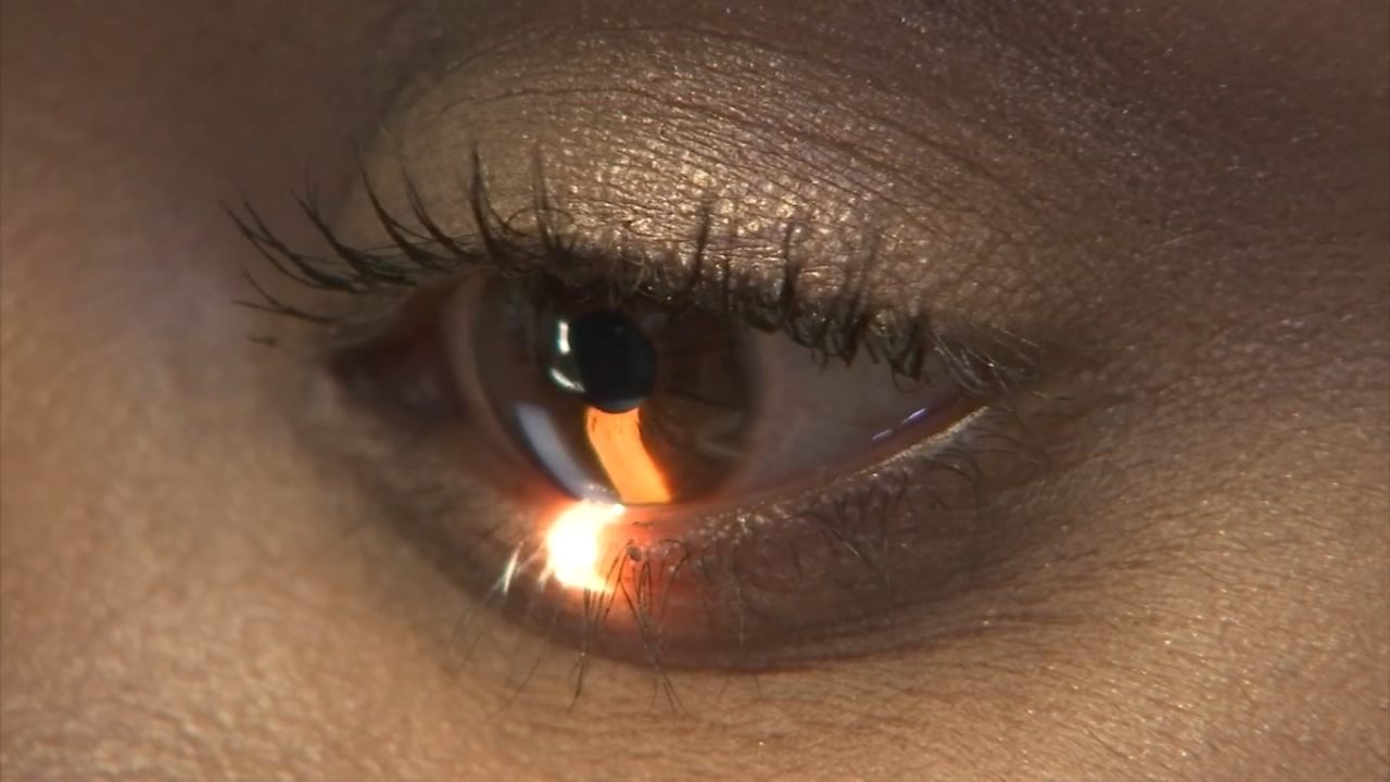 Doctors Warn Of Mite Infestation In Eyelash Extensions Wsb Tv