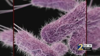 Dozens treated for salmonella outbreak at local hospital, officials say