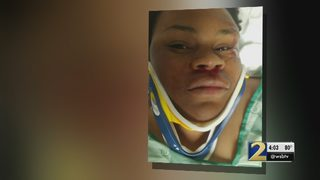 Police: Teen hit by car walking to school suffered minor injuries
