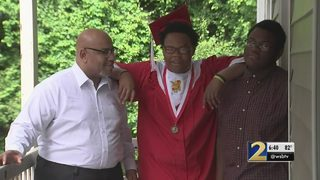 Student graduates days after he was hit by car, suffered concussion