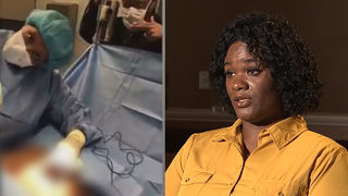 Woman says dancing doctor left her disfigured while making music video during surgery