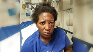 WEEKEND ATTACK: Uber driver beaten, robbed by women she picked up on GSU campus